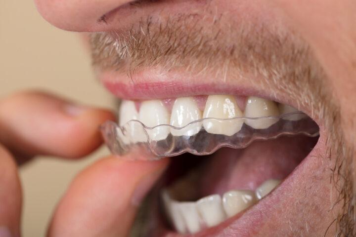 Bettskena – det effektiva verktyget som motverkar tandgnissling